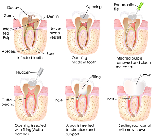 Basking Ridge Root Canal